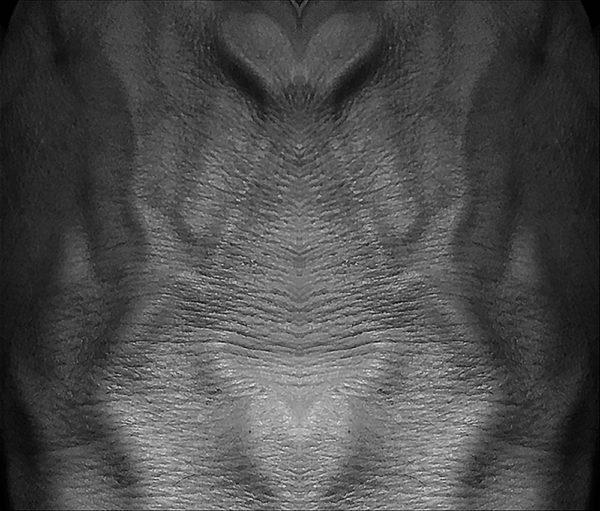 Skinscape 11